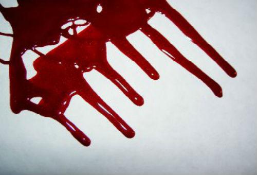 К чему сниться кровь из шеи