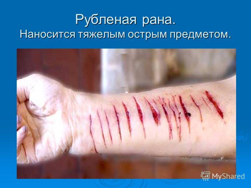 Сонник кровь из раны на теле