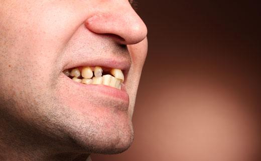 К Чему Снятся Когда Зуб Крошится